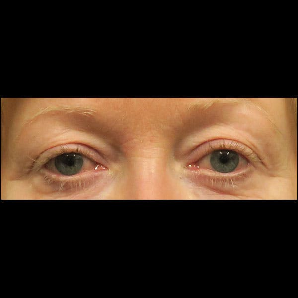 Eyelid Lift Gallery - Patient 4751984 - Image 1