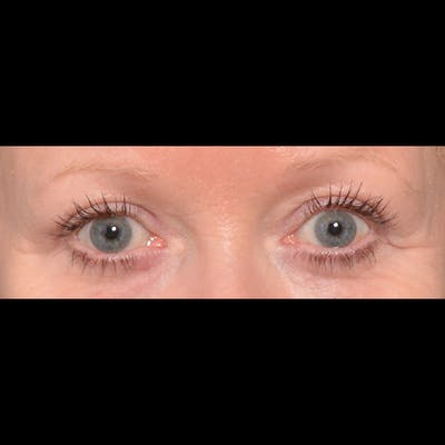 Eyelid Surgery Gallery - Patient 4751984 - Image 2