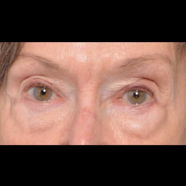 Eyelid Lift Gallery - Patient 4751985 - Image 1