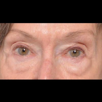 Eyelid Surgery Gallery - Patient 4751985 - Image 1