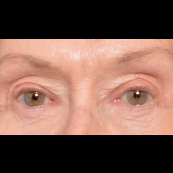Eyelid Surgery Gallery - Patient 4751985 - Image 2