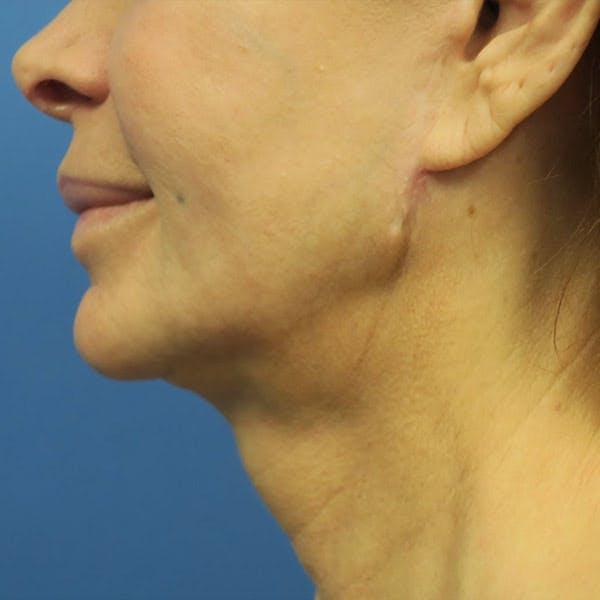 Facelift Gallery - Patient 4751986 - Image 5