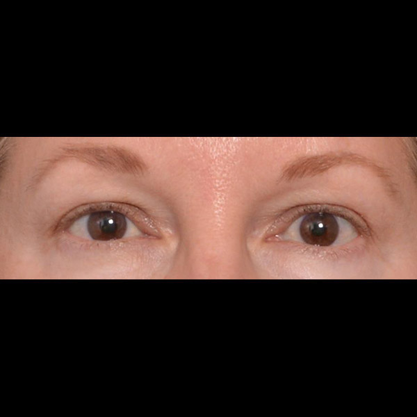 Eyelid Lift Gallery - Patient 4751987 - Image 15