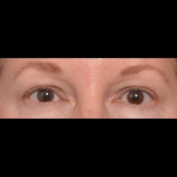 Eyelid Surgery Gallery - Patient 4751987 - Image 1