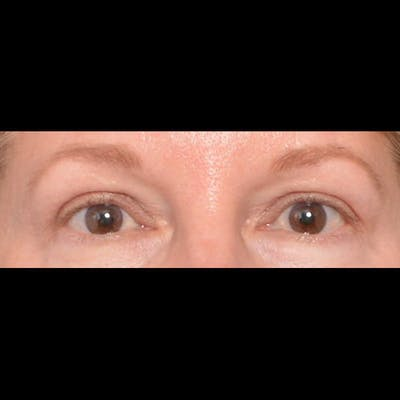 Eyelid Surgery Gallery - Patient 4751987 - Image 2