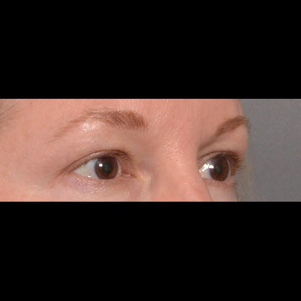 Eyelid Surgery Gallery - Patient 4751987 - Image 3