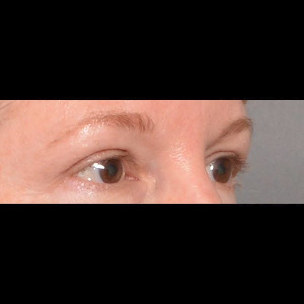 Eyelid Surgery Gallery - Patient 4751987 - Image 4