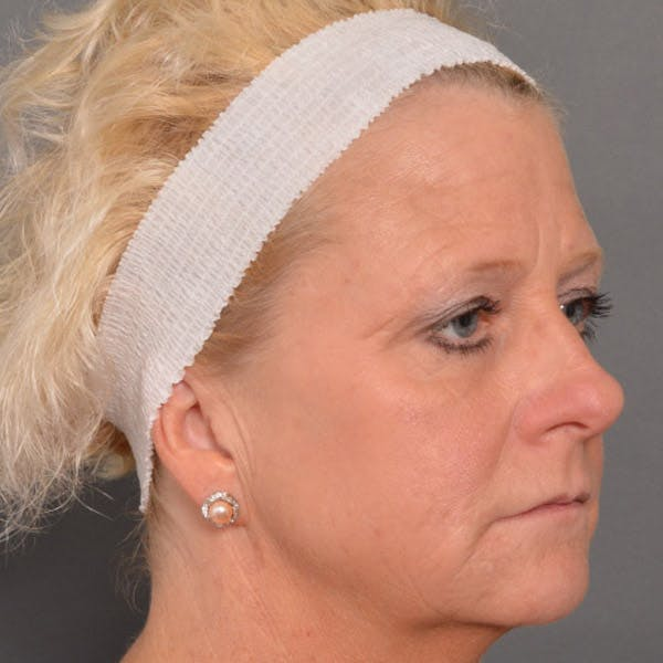 Facelift Gallery - Patient 4751989 - Image 3