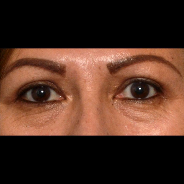 Eyelid Lift Gallery - Patient 4751988 - Image 16