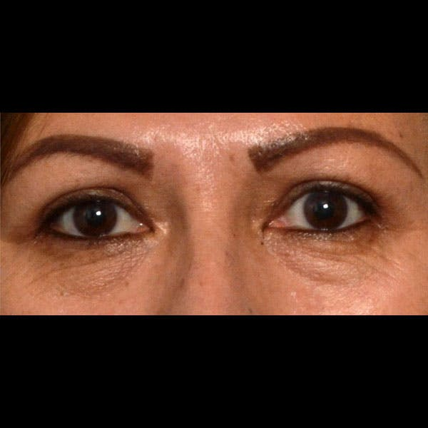 Eyelid Lift Gallery - Patient 4751988 - Image 1