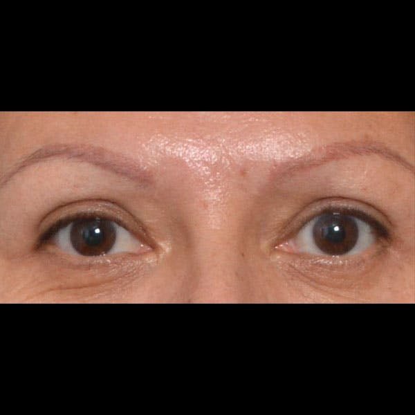 Eyelid Lift Gallery - Patient 4751988 - Image 2