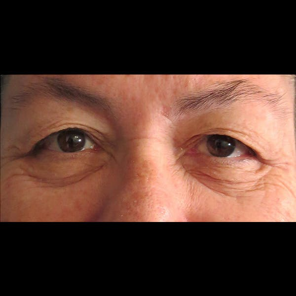 Eyelid Lift Gallery - Patient 4751995 - Image 1