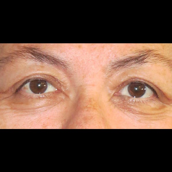Eyelid Lift Gallery - Patient 4751995 - Image 2