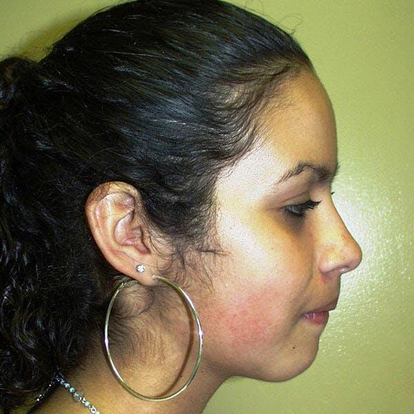 Facial Reconstruction Gallery - Patient 4751999 - Image 2