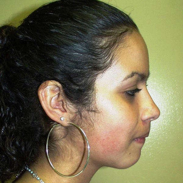 Facial Reconstruction Gallery - Patient 4751999 - Image 2
