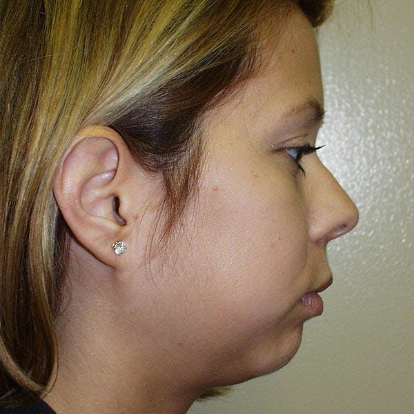 Facial Reconstruction Gallery - Patient 4752002 - Image 1