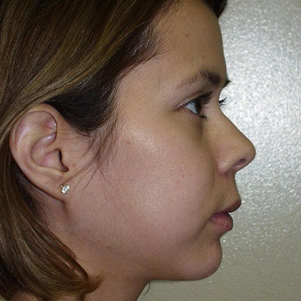 Facial Reconstruction Gallery - Patient 4752002 - Image 2