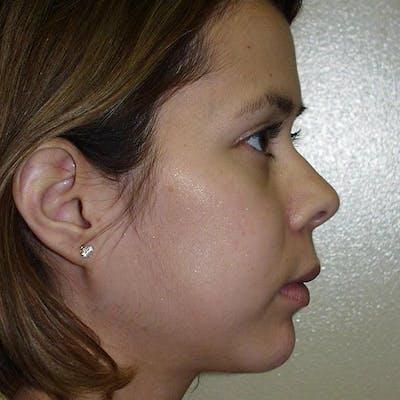 Facial Reconstruction Gallery - Patient 4752002 - Image 2