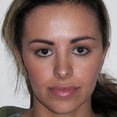 Facial Reconstruction Gallery - Patient 4752003 - Image 1