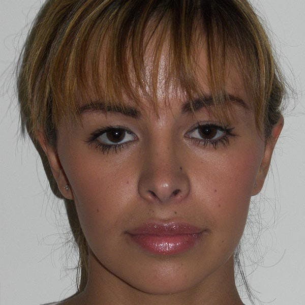 Facial Reconstruction Gallery - Patient 4752003 - Image 2