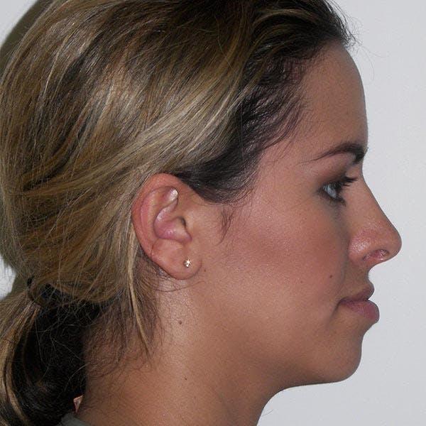 Facial Reconstruction Gallery - Patient 4752003 - Image 3