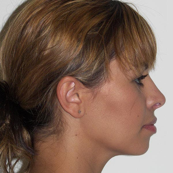 Facial Reconstruction Gallery - Patient 4752003 - Image 4