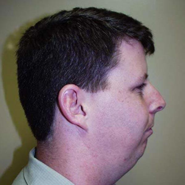 Facial Reconstruction Gallery - Patient 4752004 - Image 3