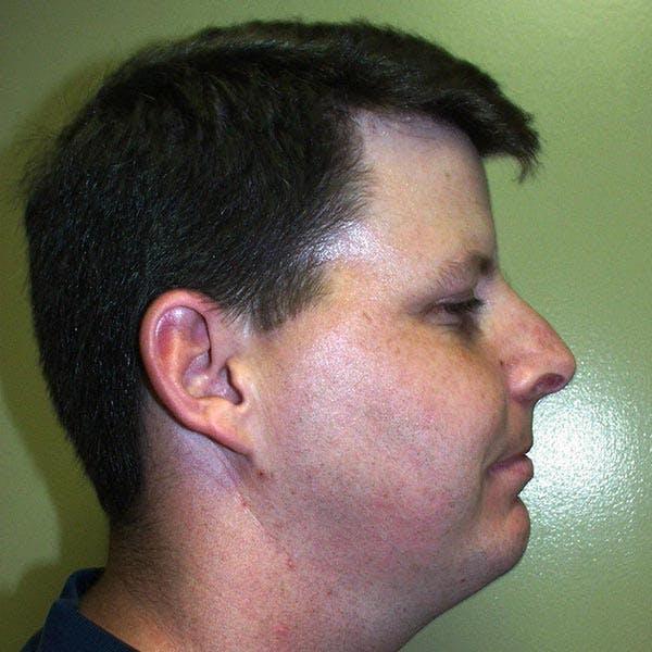 Facial Reconstruction Gallery - Patient 4752004 - Image 2