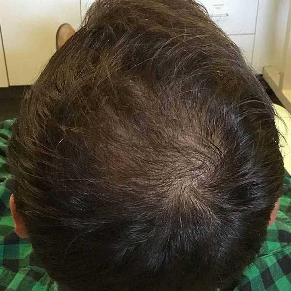 PRP Hair Restoration Gallery - Patient 4752008 - Image 2