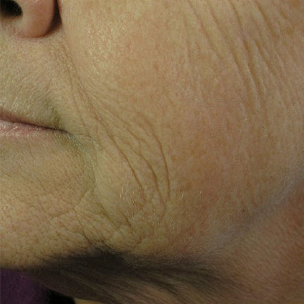Laser Resurfacing Gallery - Patient 4752017 - Image 1