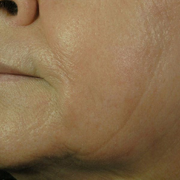 Laser Resurfacing Gallery - Patient 4752017 - Image 2