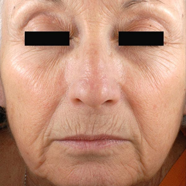 Laser Resurfacing Gallery - Patient 4752018 - Image 1