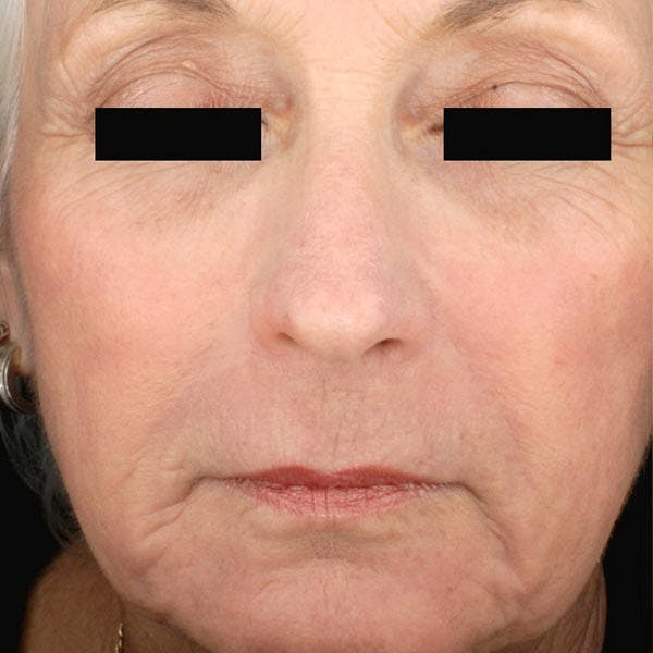 Laser Resurfacing Gallery - Patient 4752018 - Image 2
