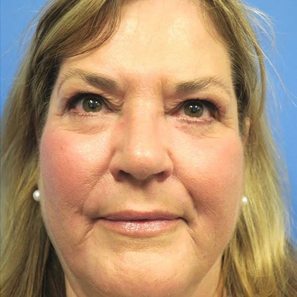 Laser Resurfacing Gallery - Patient 4752019 - Image 2