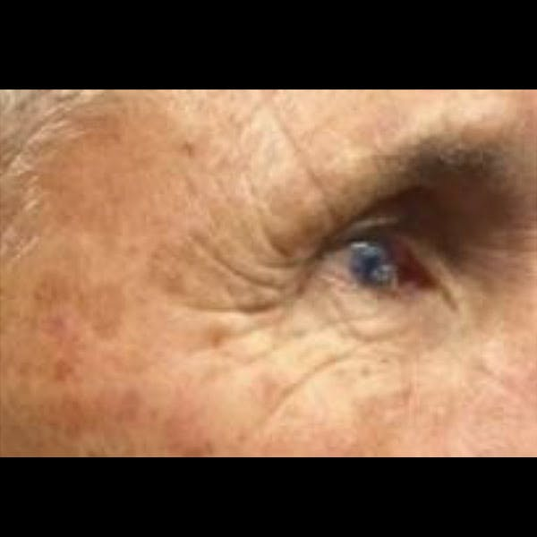 Laser Resurfacing Gallery - Patient 4752021 - Image 1