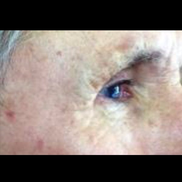Laser Resurfacing Gallery - Patient 4752021 - Image 2