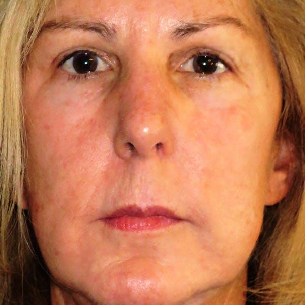 Lip Lift Gallery - Patient 4752024 - Image 1