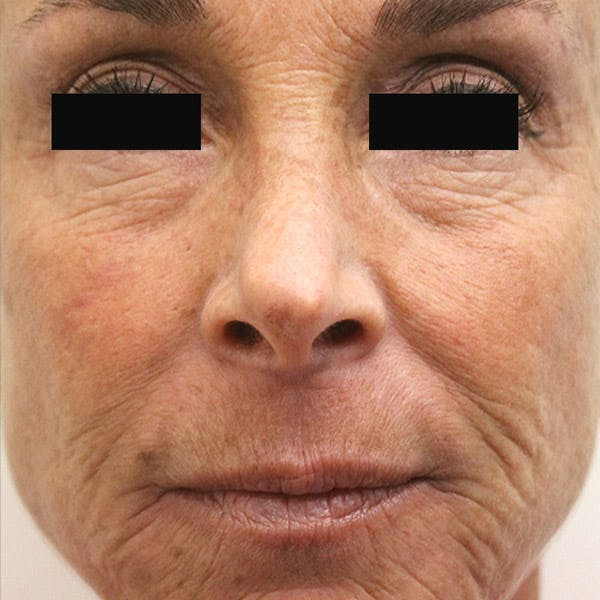 Laser Resurfacing Gallery - Patient 4752025 - Image 1