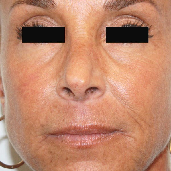 Laser Resurfacing Gallery - Patient 4752025 - Image 2