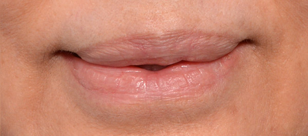 Lip Lift Gallery - Patient 4752027 - Image 2