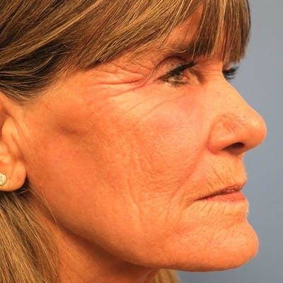 Laser Resurfacing Gallery - Patient 4752028 - Image 1