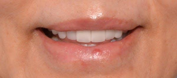 Lip Lift Gallery - Patient 4752027 - Image 2