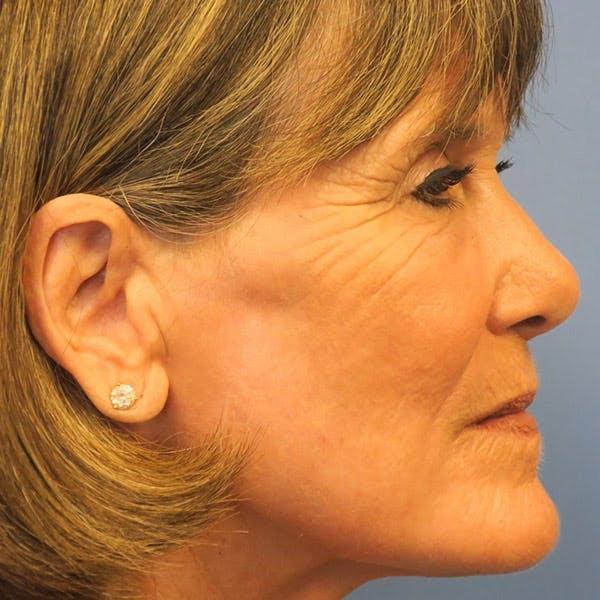 Laser Resurfacing Gallery - Patient 4752028 - Image 2