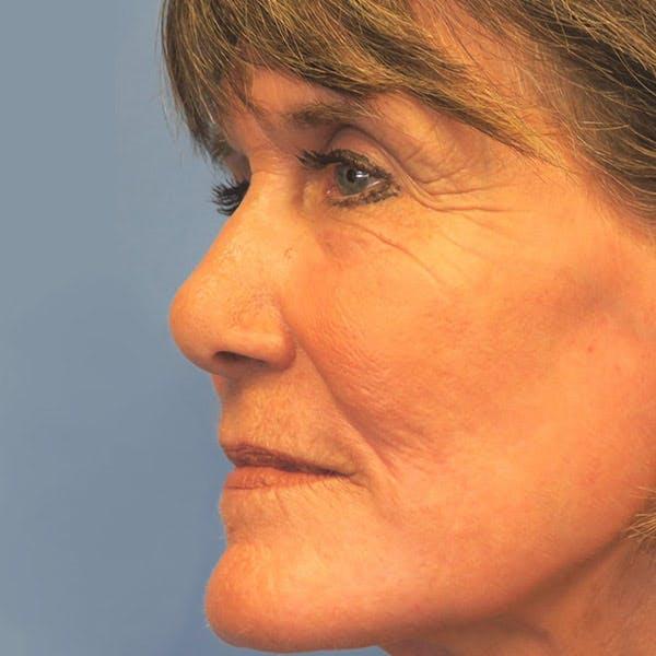 Laser Resurfacing Gallery - Patient 4752028 - Image 4