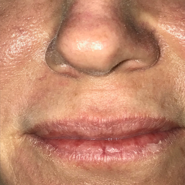 Lip Lift Gallery - Patient 4752032 - Image 3