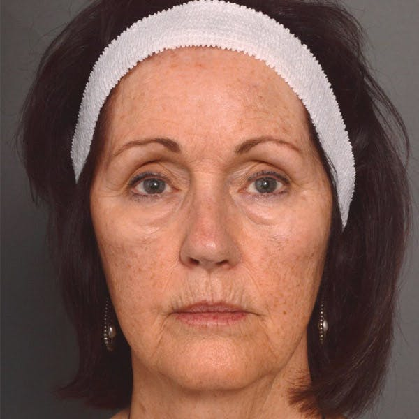 Laser Resurfacing Gallery - Patient 4752033 - Image 1