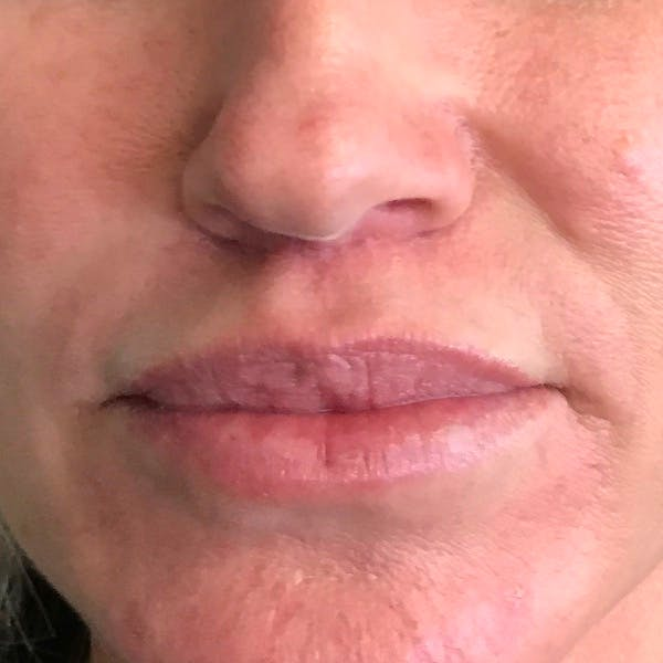 Lip Lift Gallery - Patient 4752032 - Image 2
