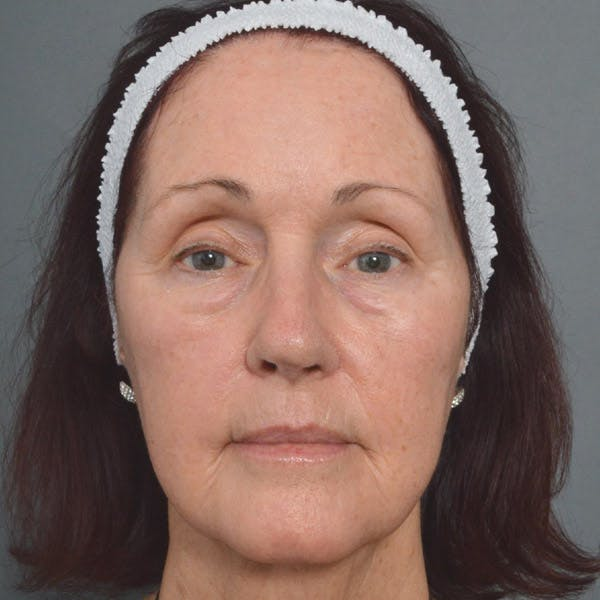 Laser Resurfacing Gallery - Patient 4752033 - Image 2