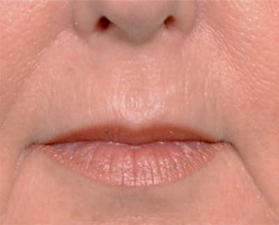 Lip Lift Gallery - Patient 4752034 - Image 1