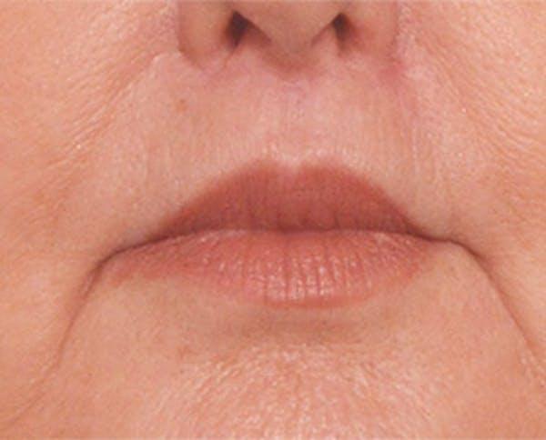 Lip Lift Gallery - Patient 4752034 - Image 2